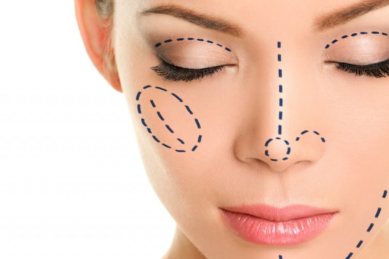 All About Nose Surgery