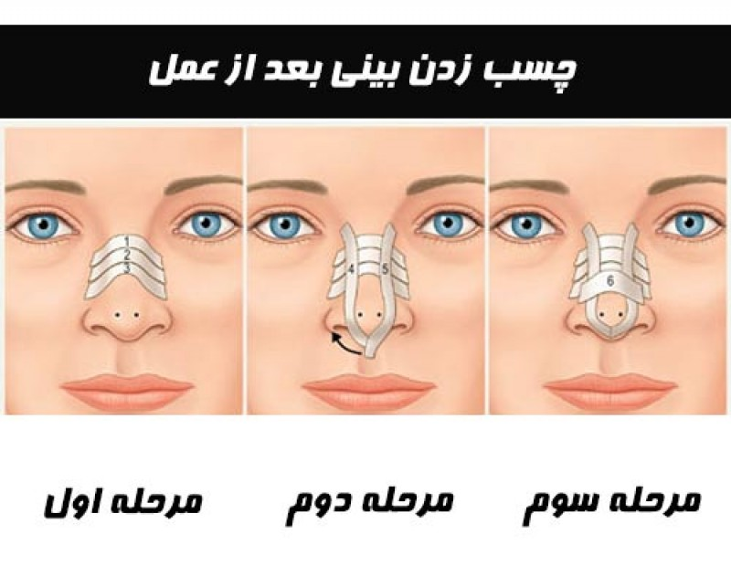 How to Tape the Nose After Rhinoplasty