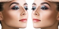 How To Choose The Best Nose Job Surgeon